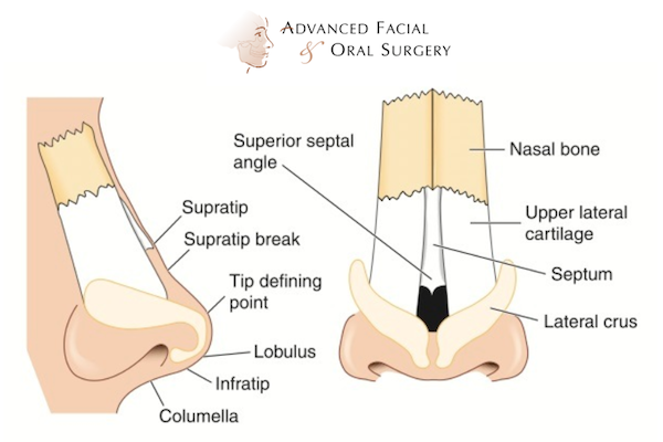 Nasal bones and cartilage rhinoplasty