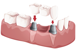 partial prosthesis (fixed bridge)